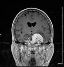 Not my brain, but similar tumor, opposite side.